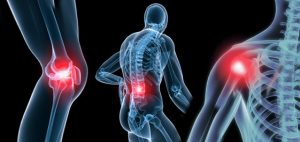 Orthopedic-Conditions-Osteoarthritis_cropped